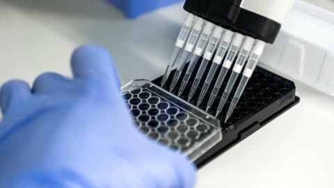 An einem Krebsforschungszentrum werden Proben abgefüllt