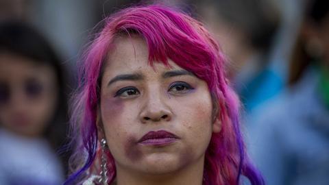 Eine Mexikanerin mit blauen Flecken im Gesicht nimmt an einem Protest gegen Femizide teil.