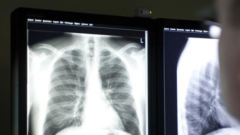 Ein Arzt schaut sich das Röntgenbild einer Lunge an.