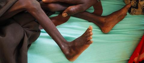 Kenia, Dadaab: Eine Mutter legt ihre Hand auf das Bein ihres stark unterernährten Sohns in einem von der Gesellschaft für Internationale Zusammenarbeit geführten Krankenhaus.