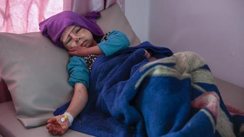 Unterernährtes Kind im Jemen