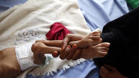 Frau hält Beine eines abgemagerten jemischen Kindes